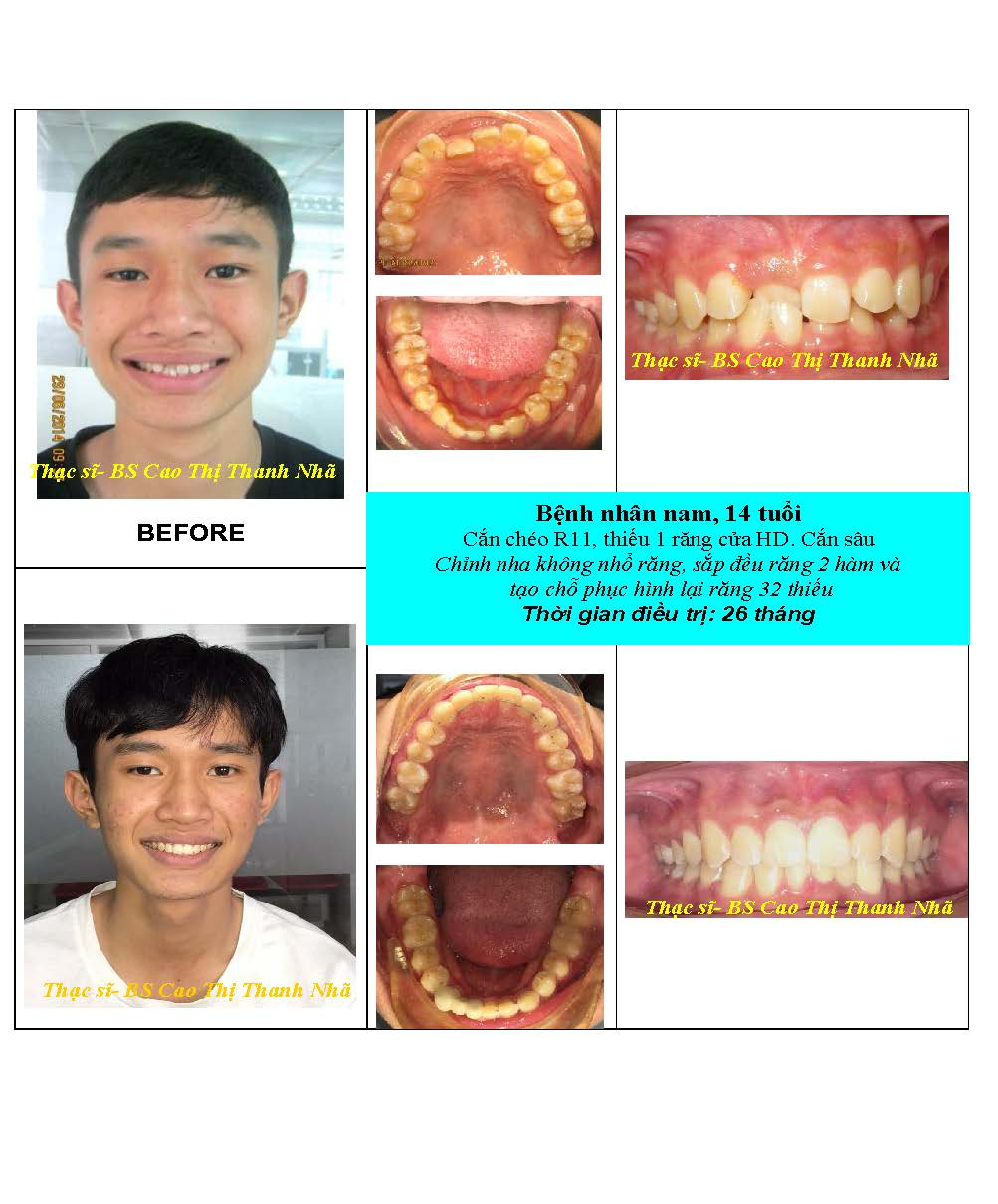 BN_before_after_Nieng_rang-Bs___Nha_Page_6