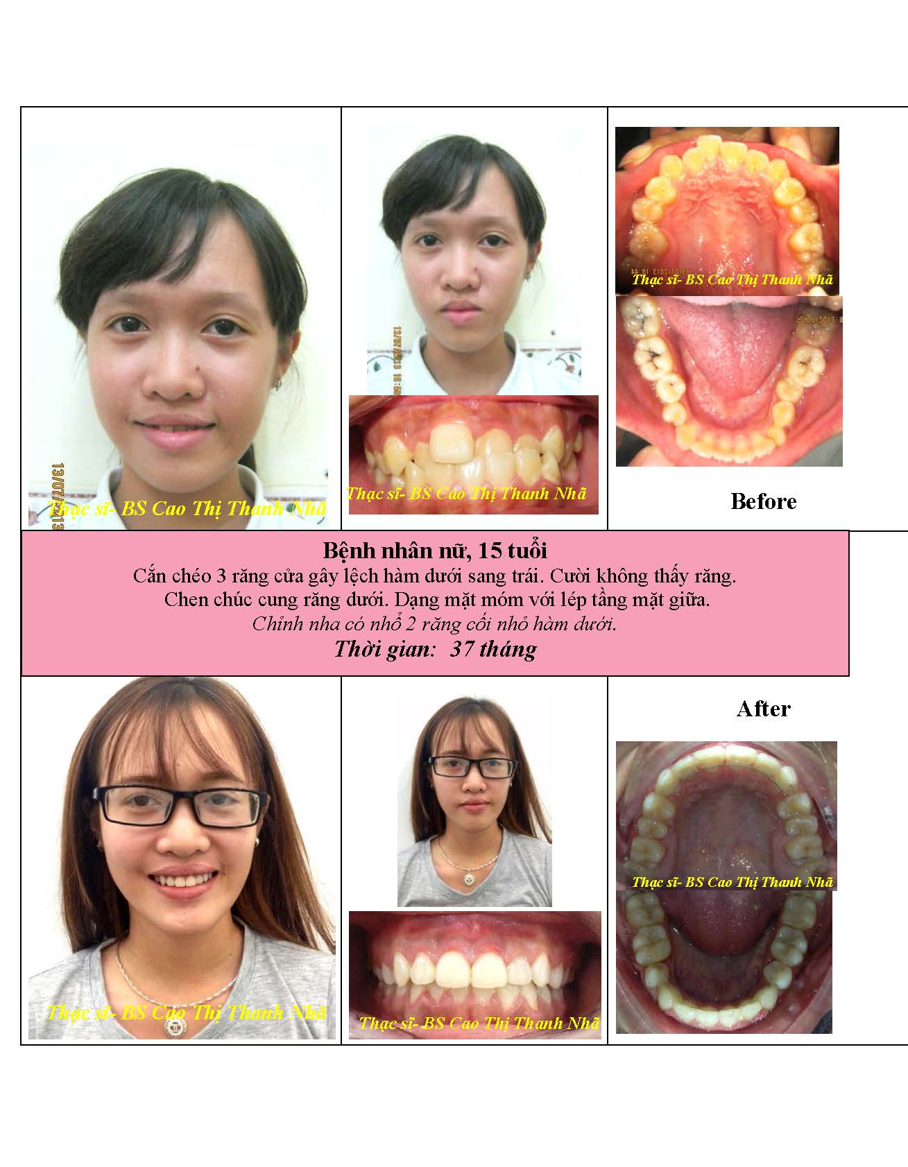 BN_before_after_Nieng_rang-Bs___Nha_Page_7
